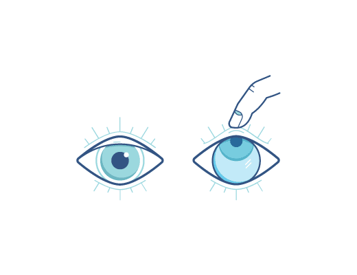 Pull Eyelids To Remove Contact Lens