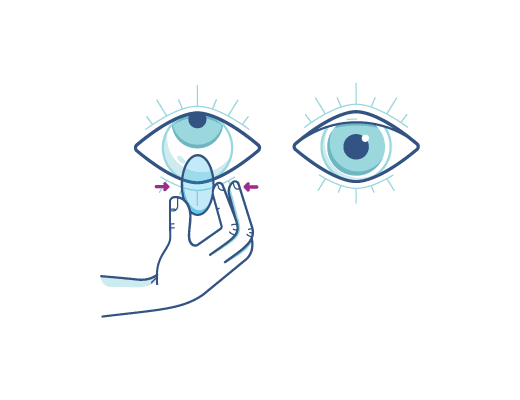 Removing Contact Lens